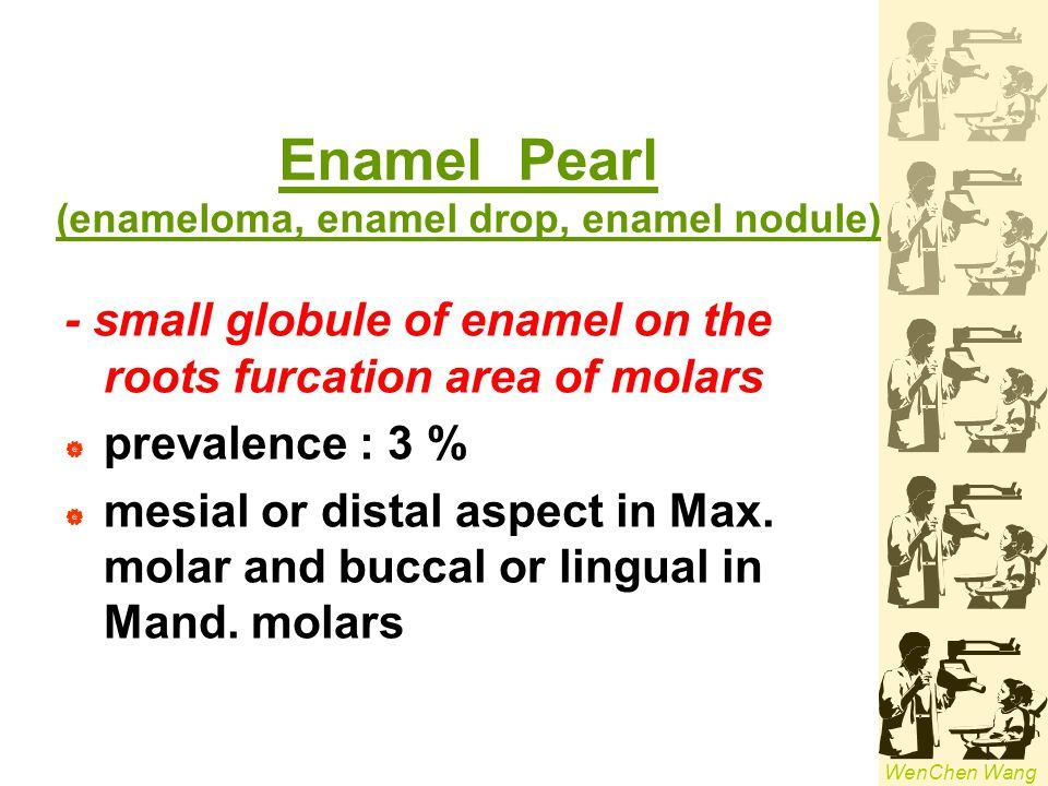 Enamel Pearl (enameloma, enamel drop, enamel nodule)