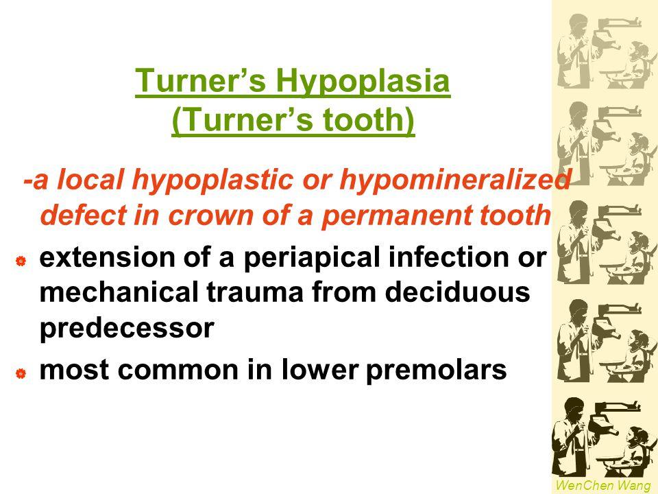 Turner's Hypoplasia (Turner's tooth)