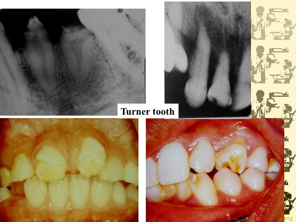 Turner tooth