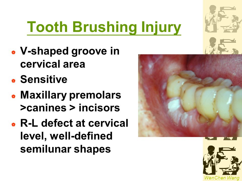 Tooth Brushing Injury V-shaped groove in cervical area Sensitive