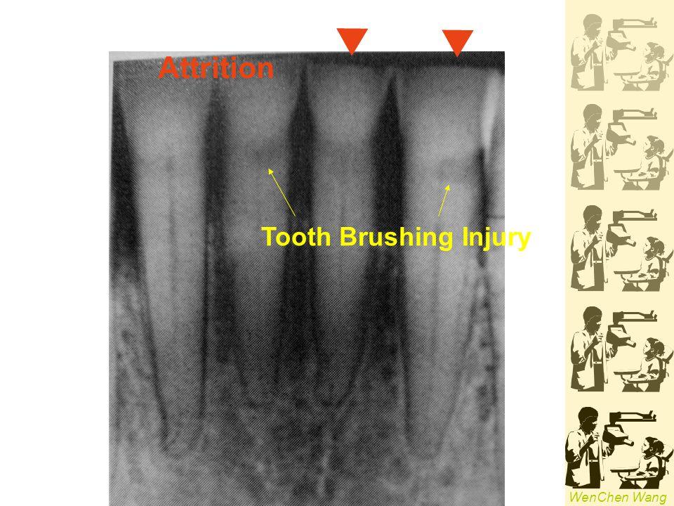 Attrition Tooth Brushing Injury