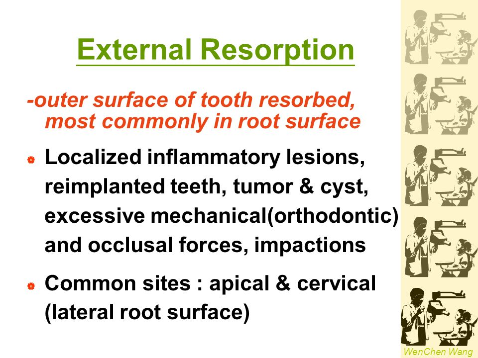 External Resorption -outer surface of tooth resorbed, most commonly in root surface.
