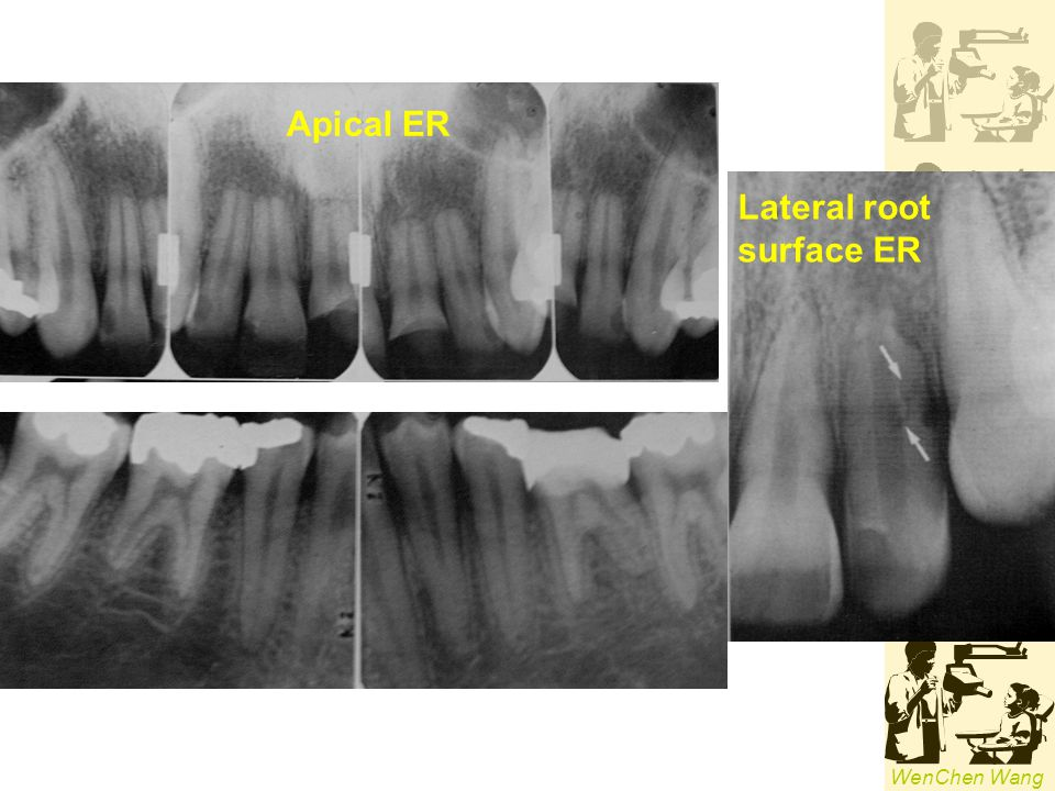 Apical ER Lateral root surface ER