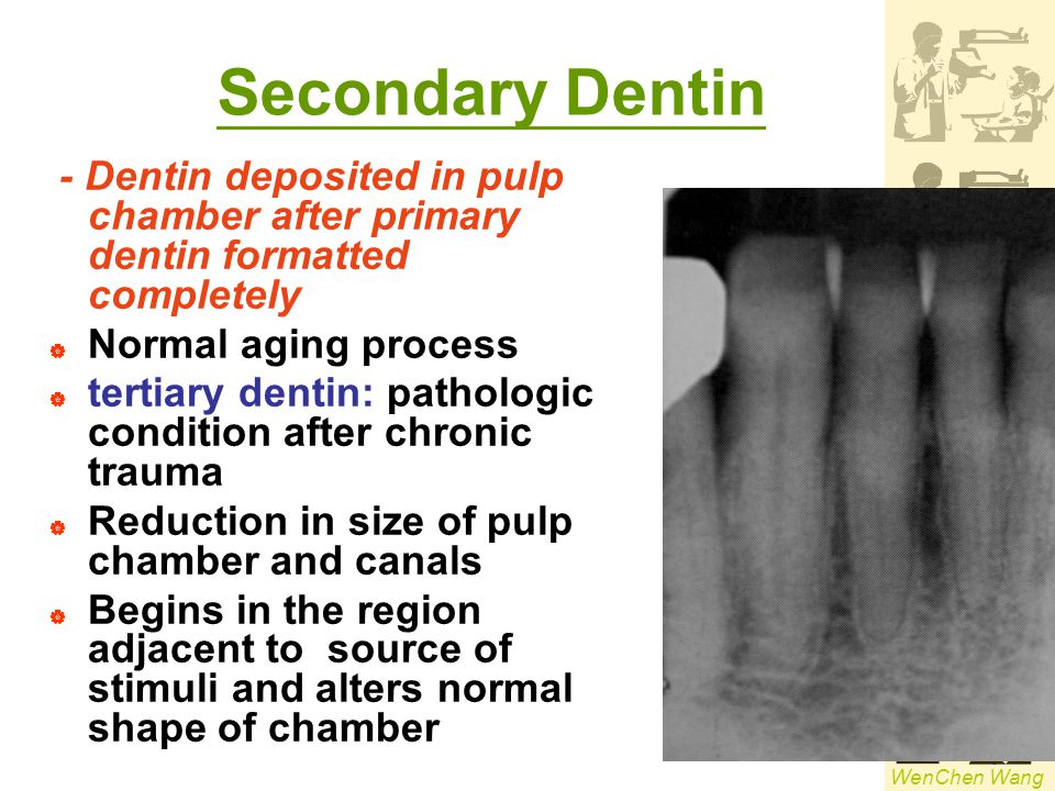 Secondary Dentin - Dentin deposited in pulp chamber after primary dentin formatted completely. Normal aging process.