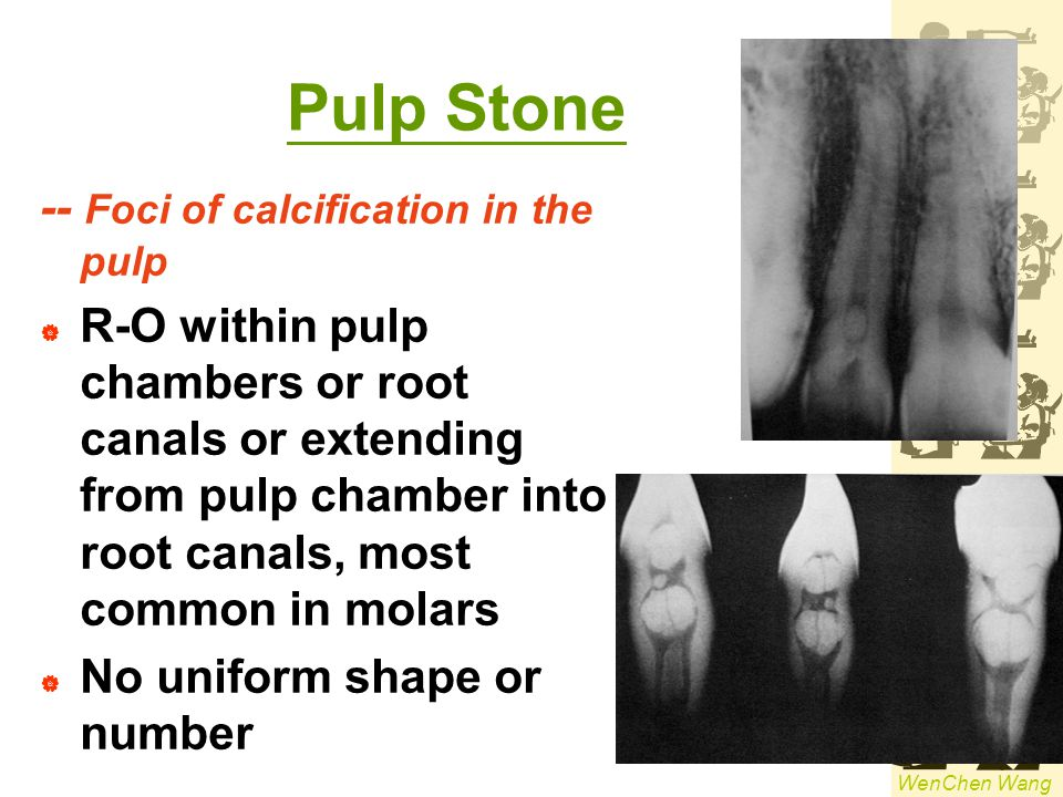 Pulp Stone -- Foci of calcification in the pulp