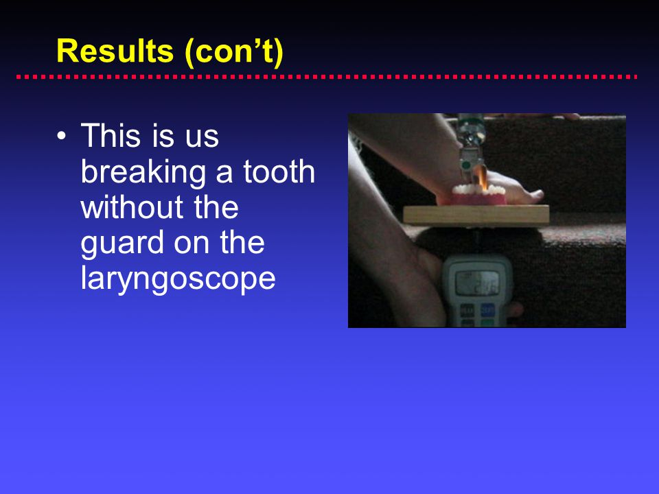 Results (con't) This is us breaking a tooth without the guard on the laryngoscope