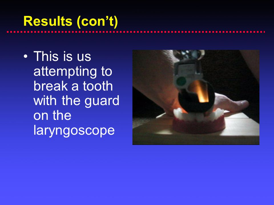 Results (con't) This is us attempting to break a tooth with the guard on the laryngoscope