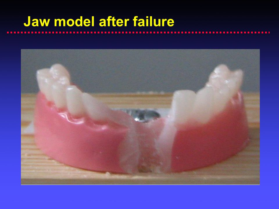Jaw model after failure