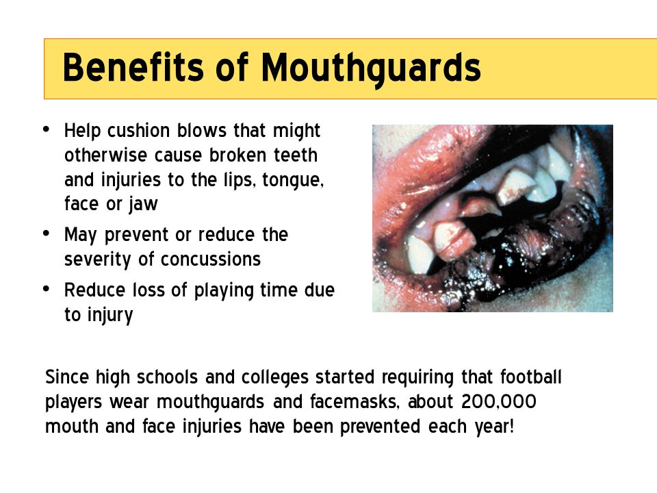 Benefits of Mouthguards