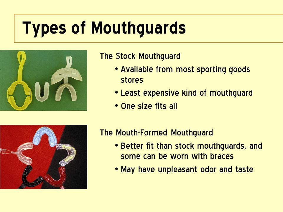 Types of Mouthguards The Stock Mouthguard