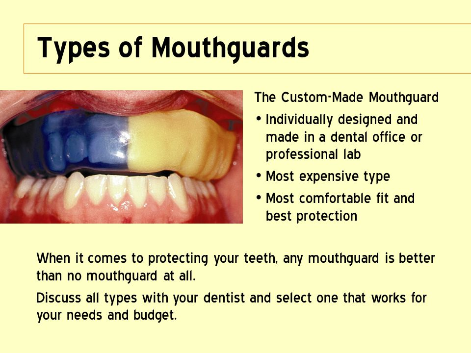 Types of Mouthguards The Custom-Made Mouthguard