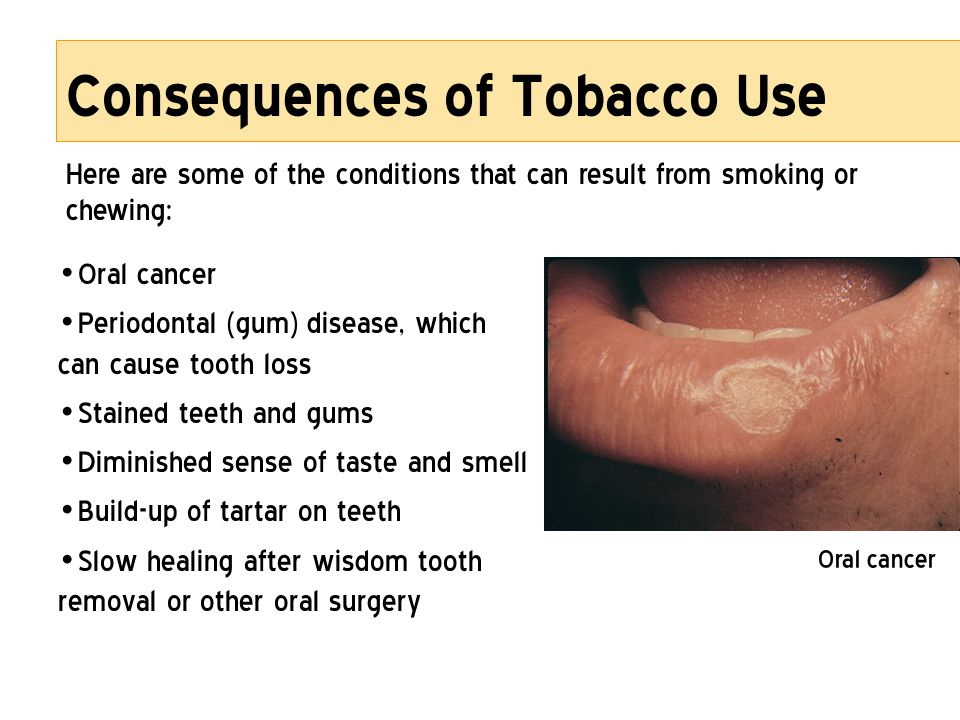 Consequences of Tobacco Use