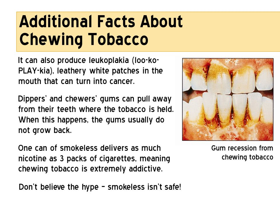 Additional Facts About Chewing Tobacco