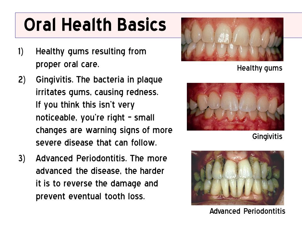 Oral Health Basics Healthy gums resulting from proper oral care.
