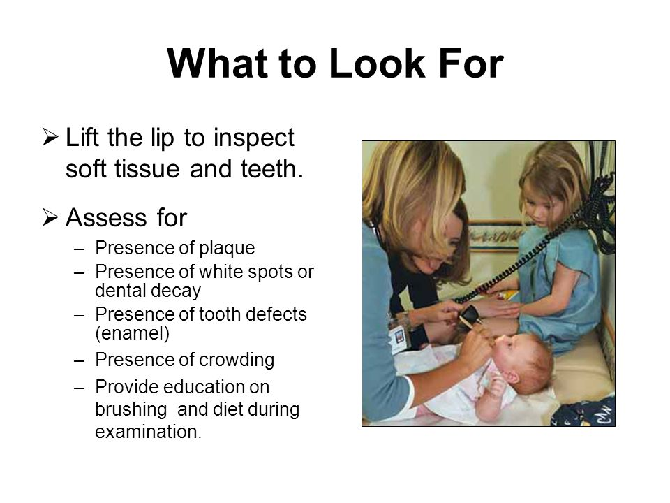 What to Look For Lift the lip to inspect soft tissue and teeth.