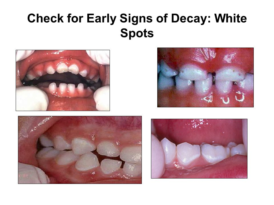 Check for Early Signs of Decay: White Spots