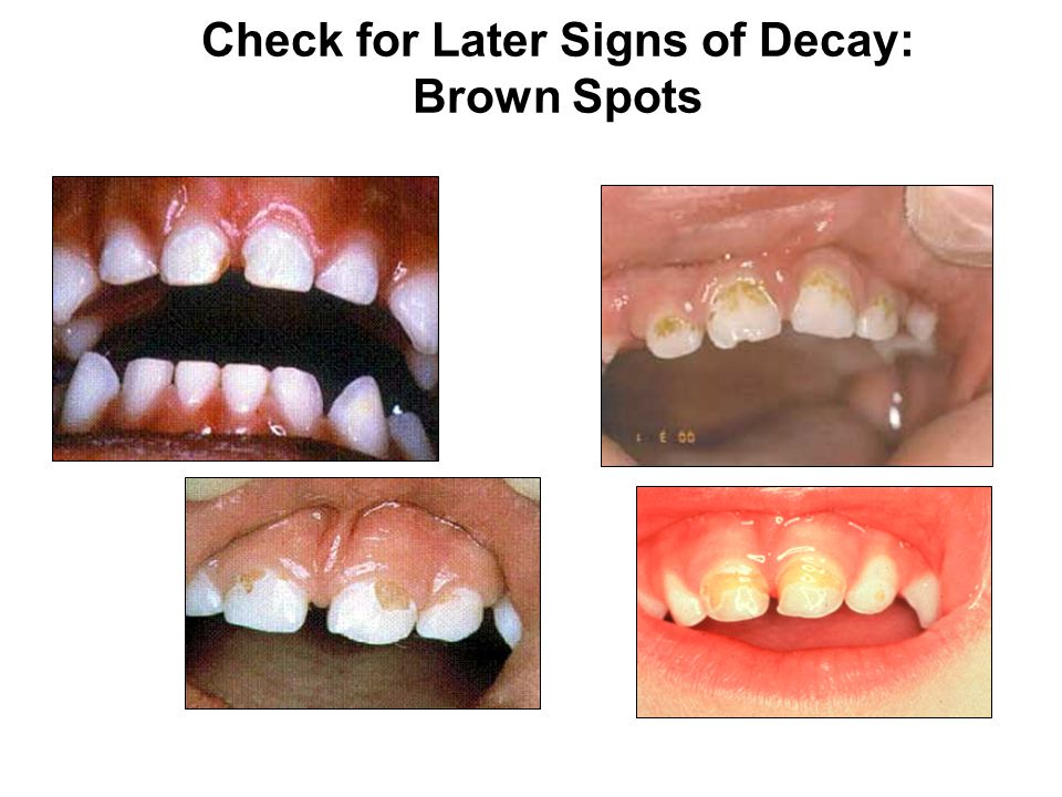 Check for Later Signs of Decay: Brown Spots