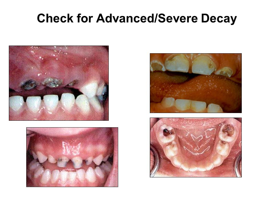 Check for Advanced/Severe Decay