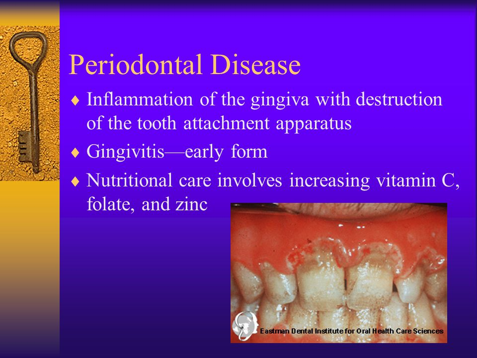 Periodontal Disease Inflammation of the gingiva with destruction of the tooth attachment apparatus.