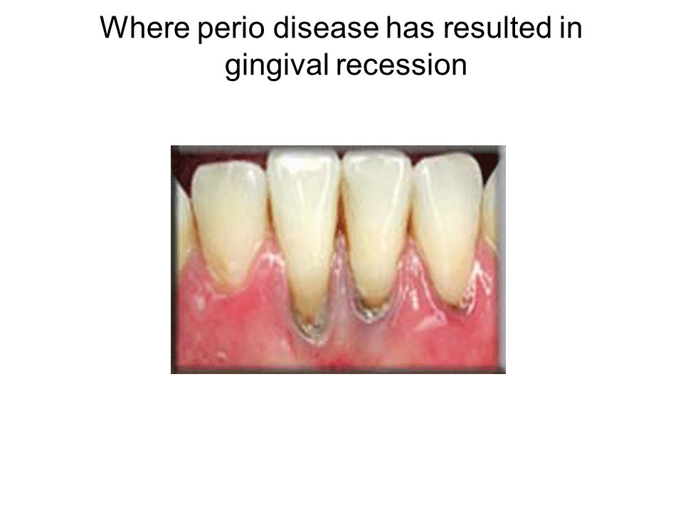 Where perio disease has resulted in gingival recession