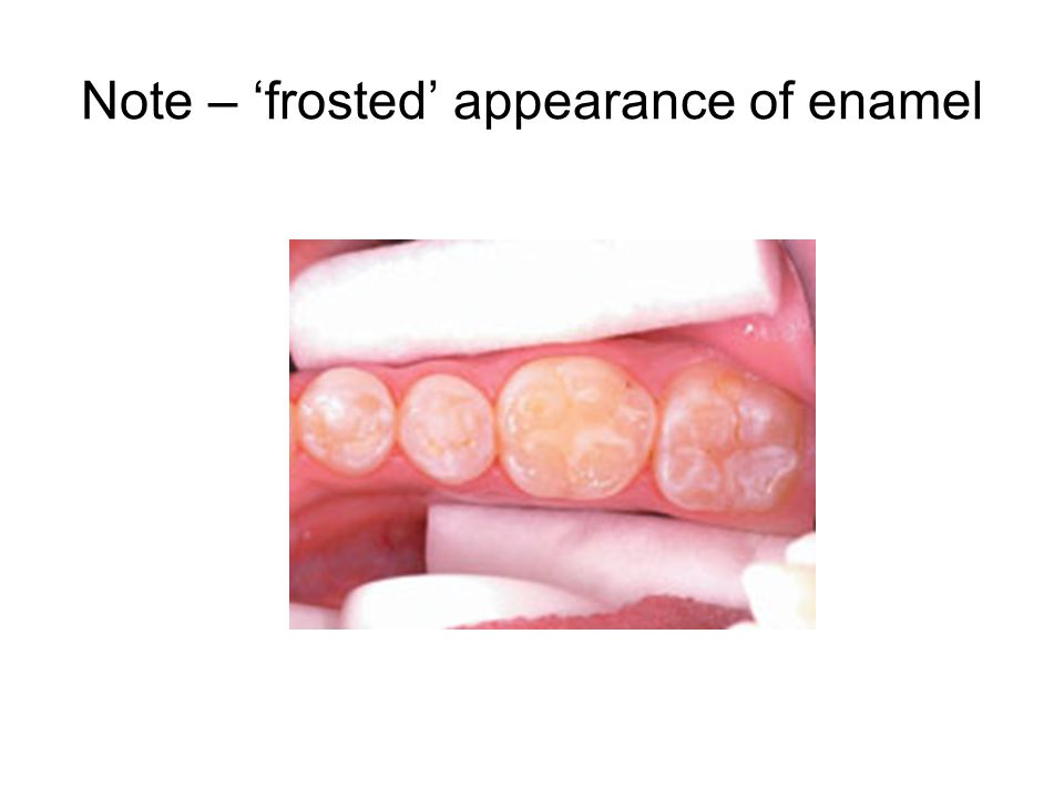 Note – 'frosted' appearance of enamel