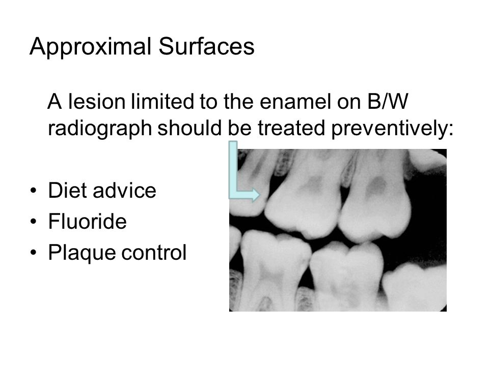 Approximal Surfaces A lesion limited to the enamel on B/W radiograph should be treated preventively: