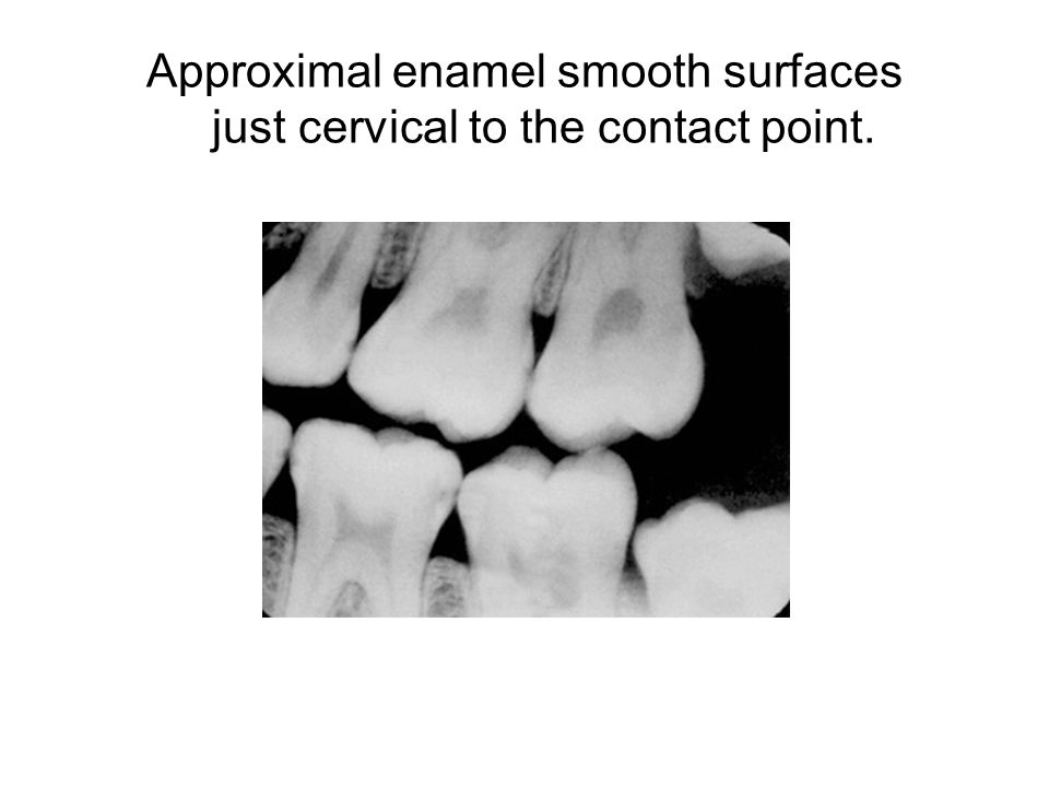 Approximal enamel smooth surfaces just cervical to the contact point.