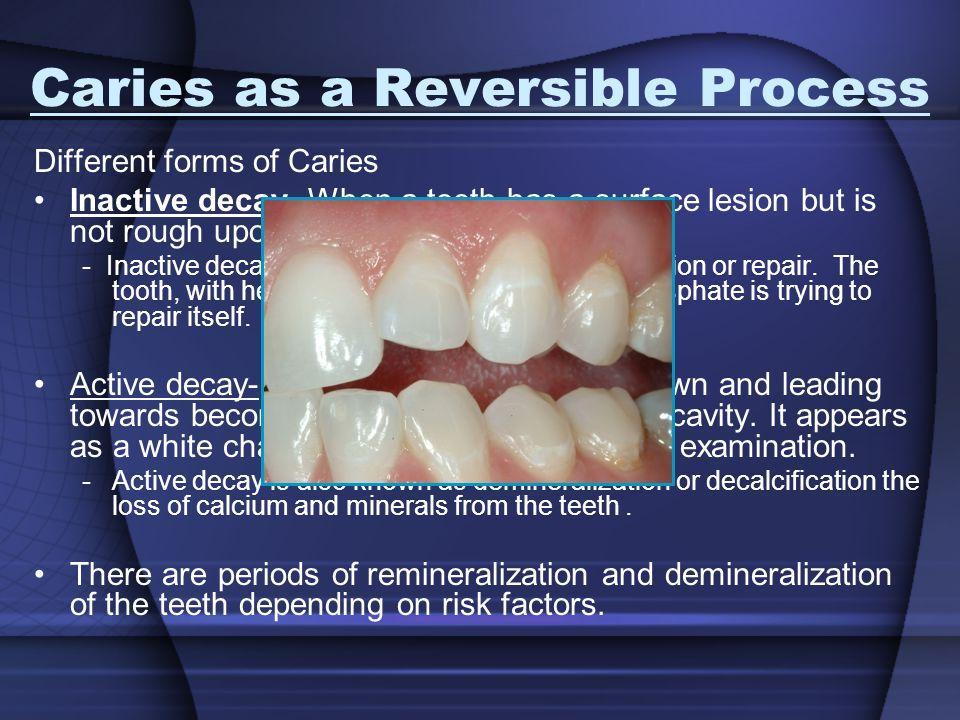 Caries as a Reversible Process