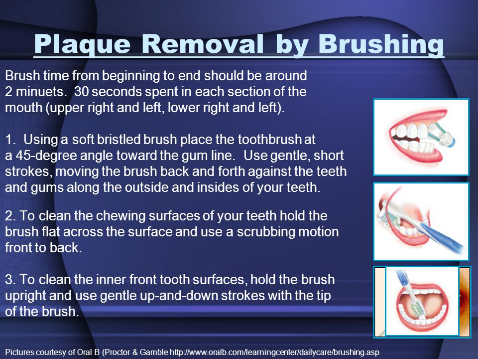 Plaque Removal by Brushing
