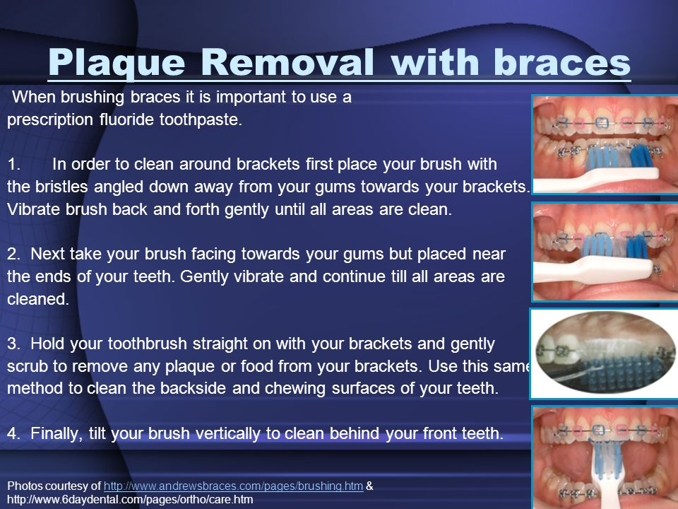 Plaque Removal with braces