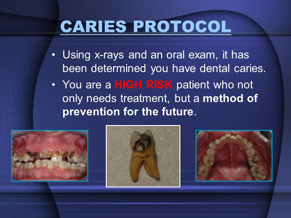 CARIES PROTOCOL Using x-rays and an oral exam, it has been determined you have dental caries.