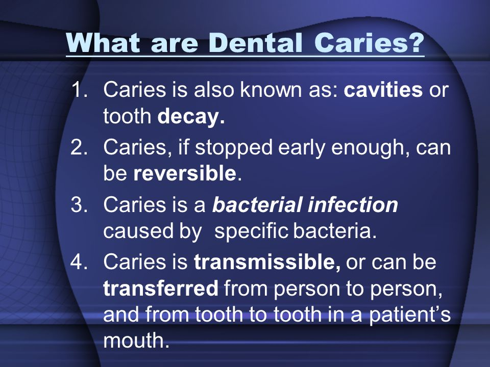 What are Dental Caries Caries is also known as: cavities or tooth decay. Caries, if stopped early enough, can be reversible.