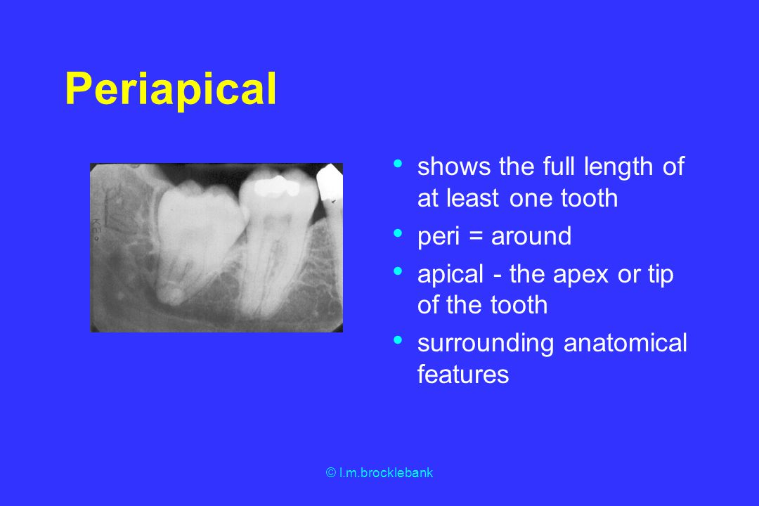 Periapical shows the full length of at least one tooth peri = around