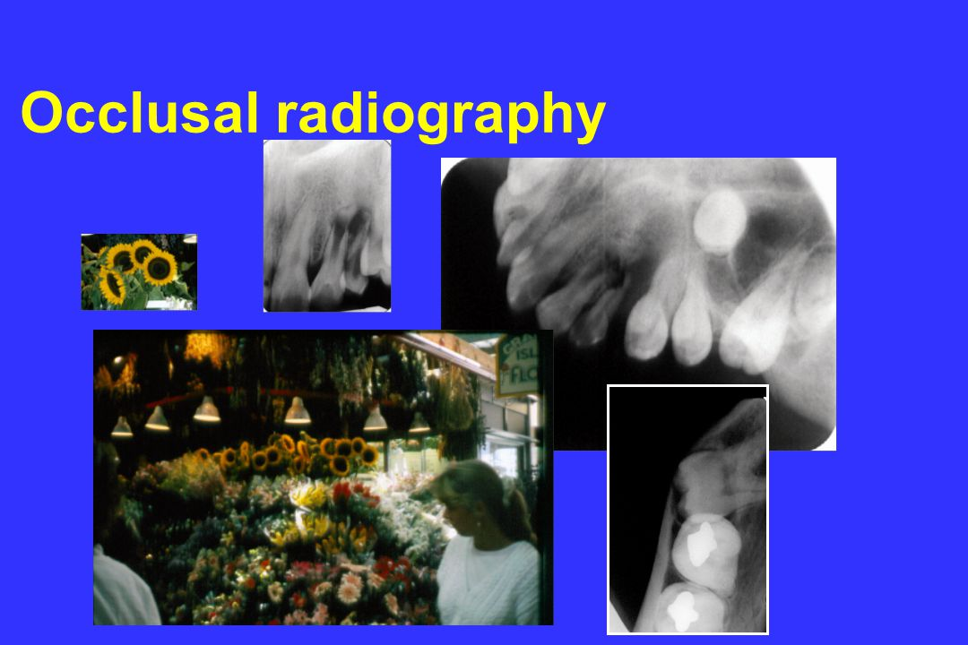 Occlusal radiography © l.m.brocklebank