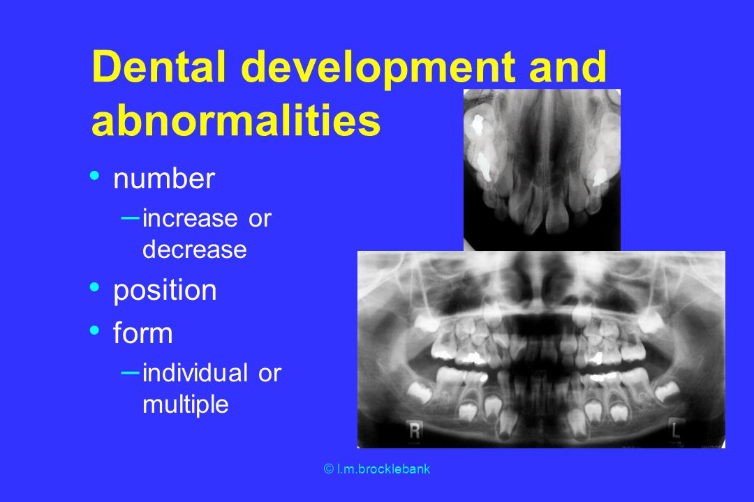 Dental development and abnormalities