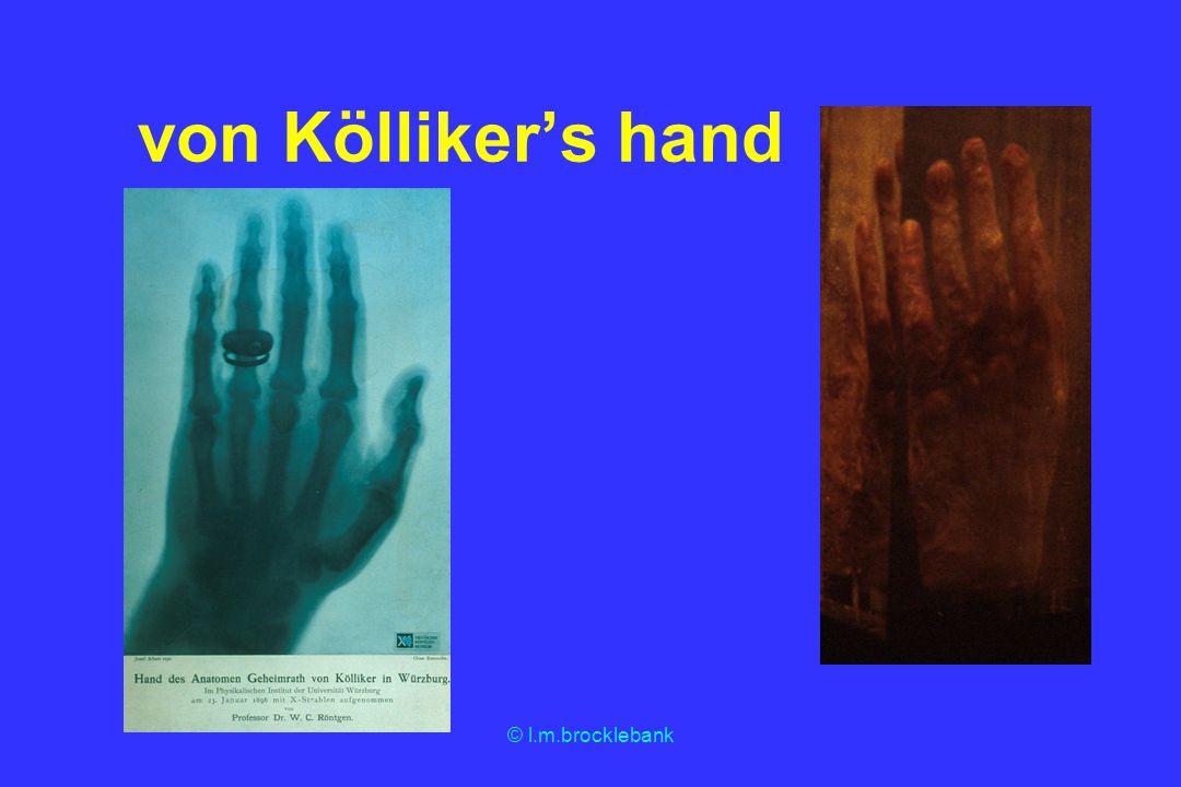 von Kölliker's hand © l.m.brocklebank