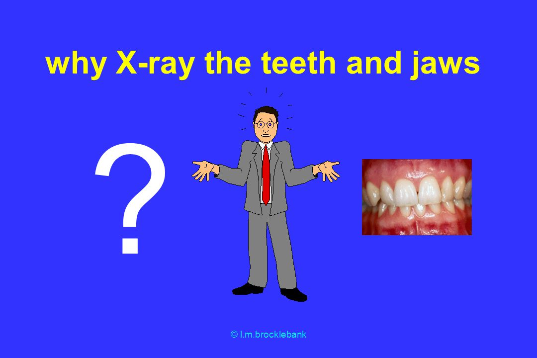 why X-ray the teeth and jaws