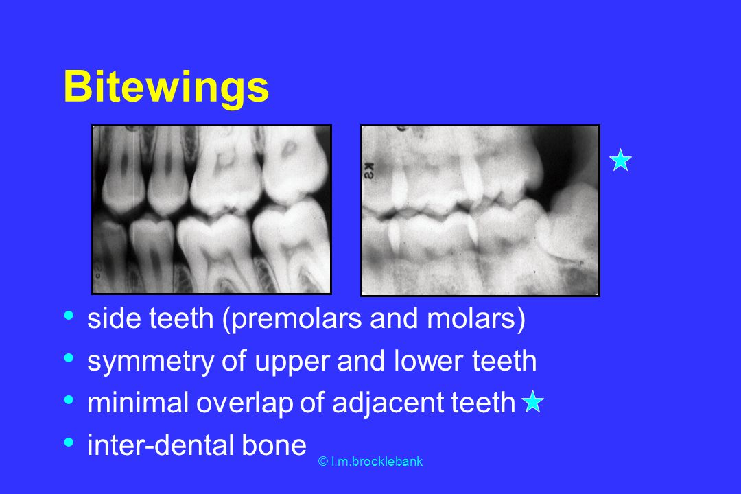 Bitewings side teeth (premolars and molars)
