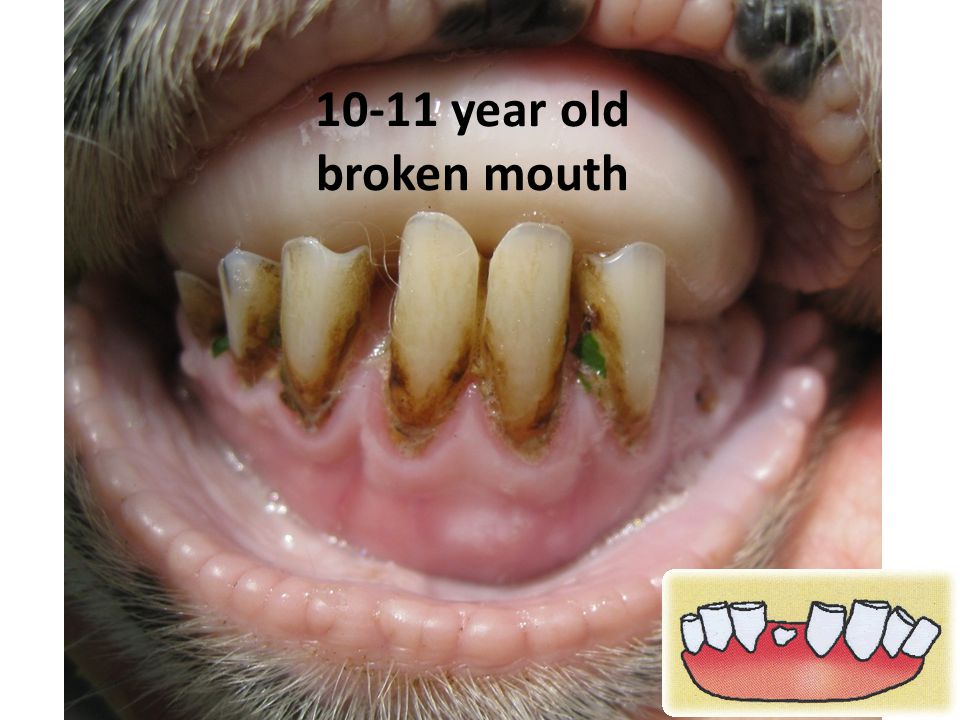 10-11 year old broken mouth