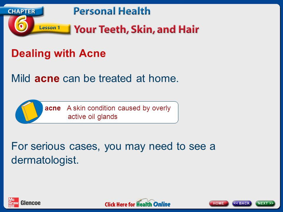 Mild acne can be treated at home.