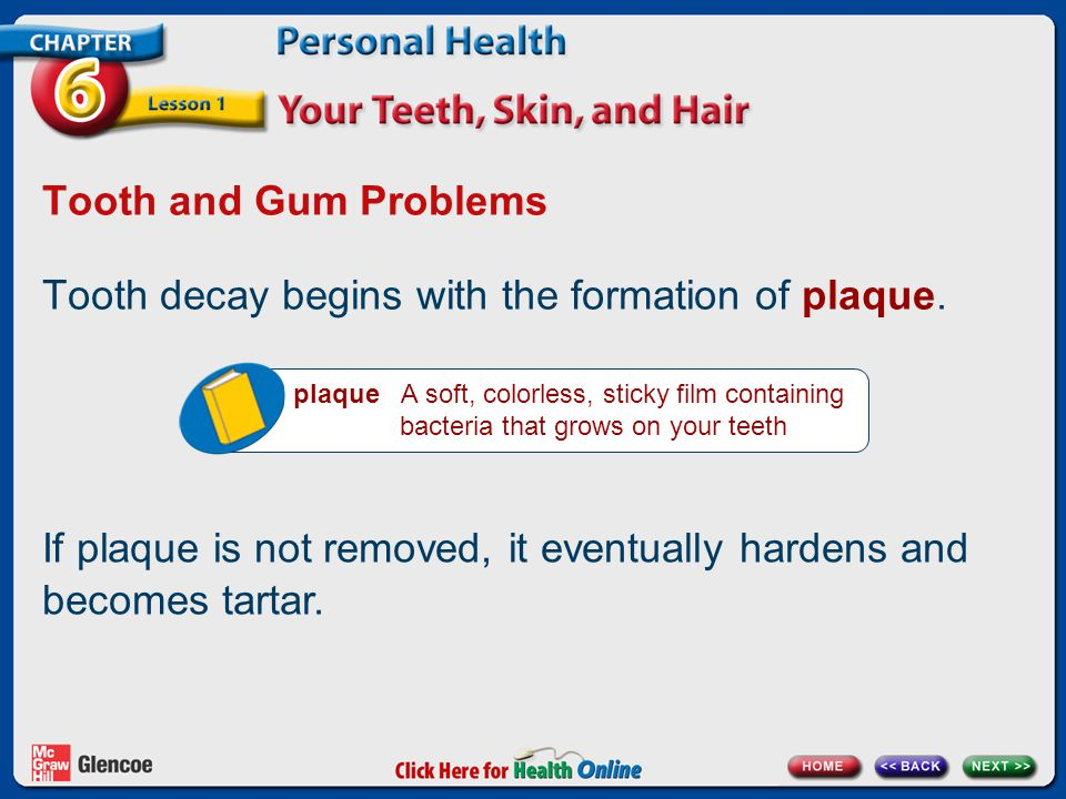 Tooth decay begins with the formation of plaque.