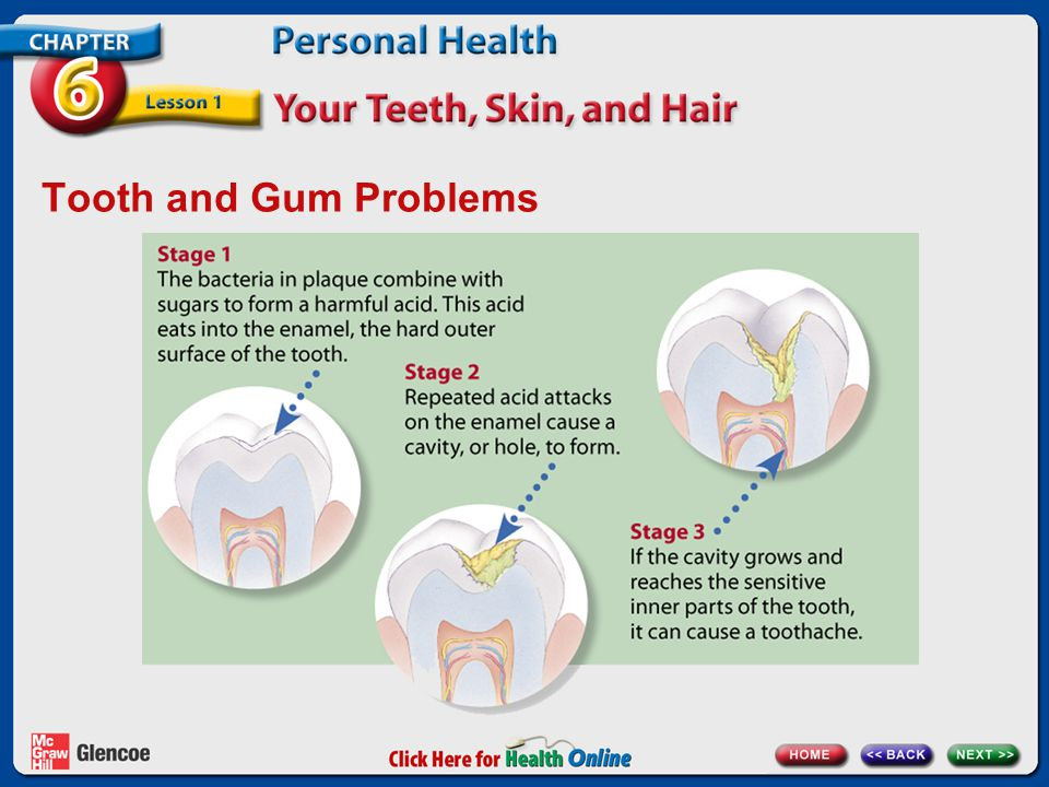 Tooth and Gum Problems