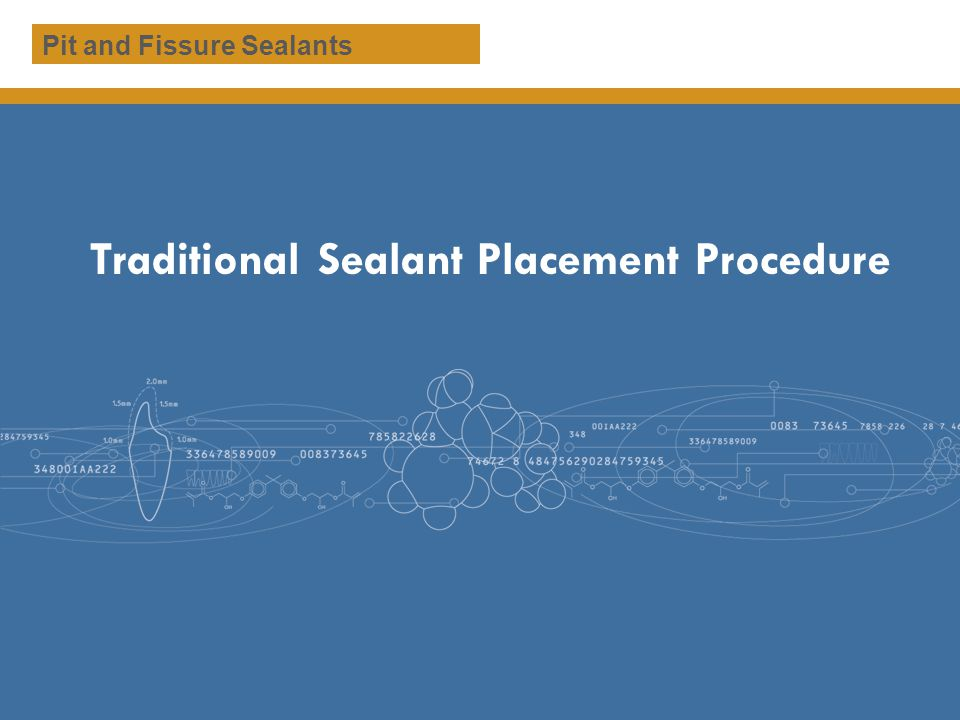 Traditional Sealant Placement Procedure