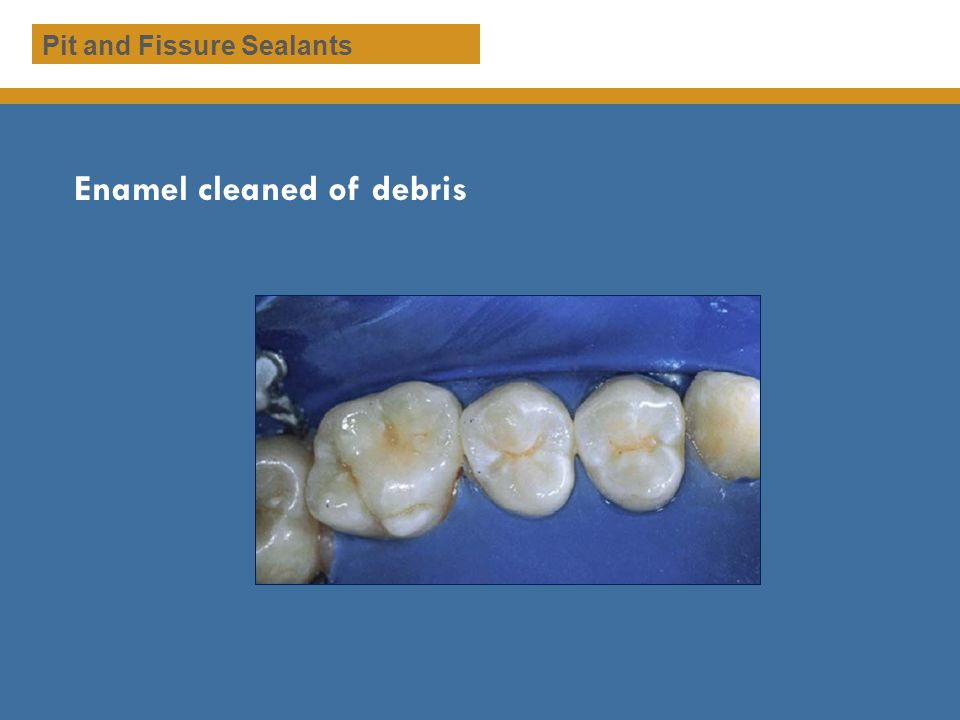 Enamel cleaned of debris
