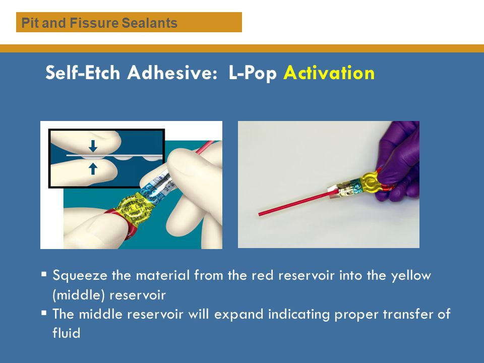 Self-Etch Adhesive: L-Pop Activation