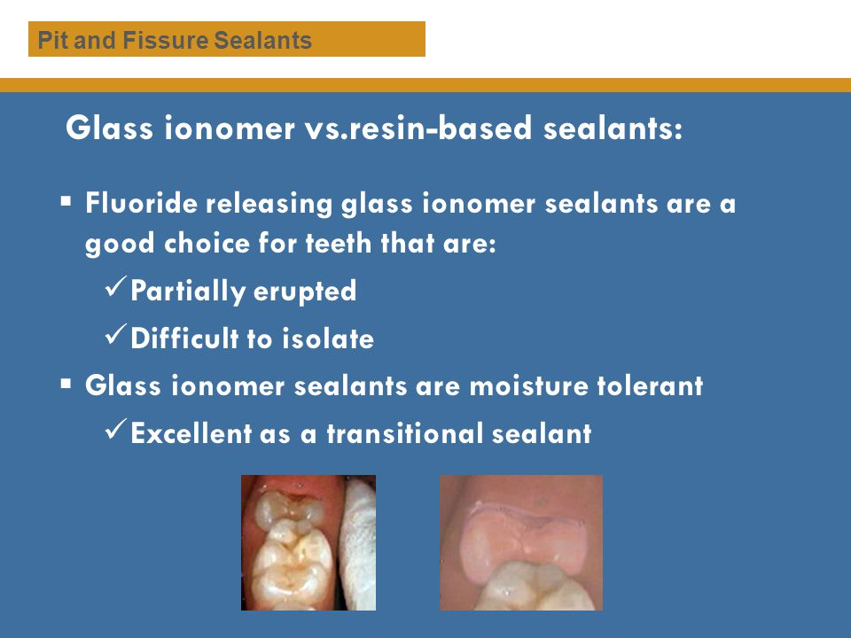 Glass ionomer vs.resin-based sealants:
