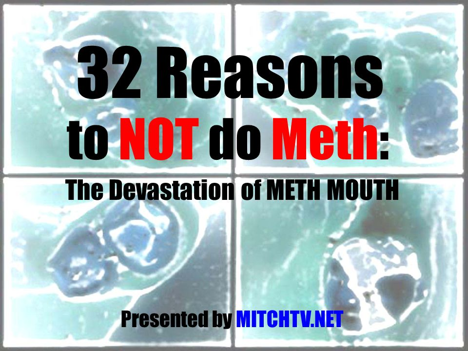 32 Reasons to NOT do Meth: The Devastation of METH MOUTH