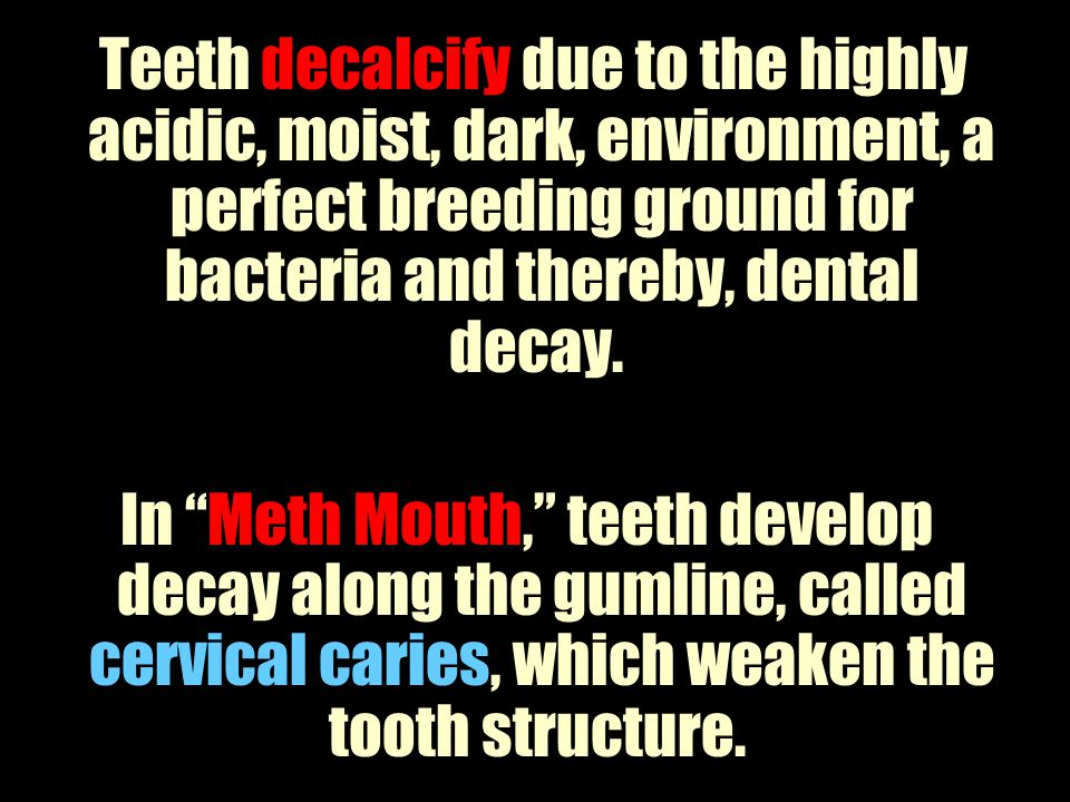 Teeth decalcify due to the highly acidic, moist, dark, environment, a perfect breeding ground for bacteria and thereby, dental decay.