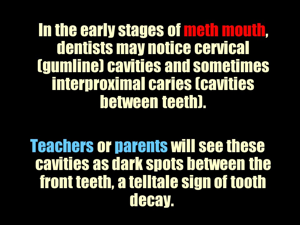 In the early stages of meth mouth, dentists may notice cervical (gumline) cavities and sometimes interproximal caries (cavities between teeth).