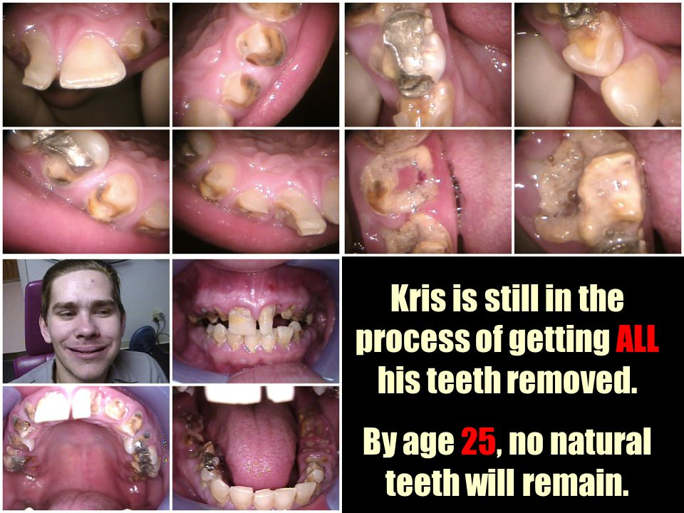 Kris is still in the process of getting ALL his teeth removed.